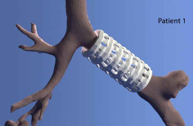 Отпечатанный на 3D принтере участок трахеи спасает жизни детям - 3