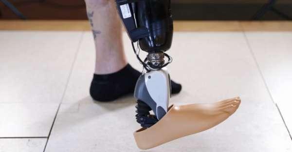 Бионический протез Ossur управляется мыслью - 1