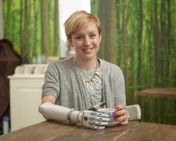 Новая модель бионической руки Bebionic Small - 1