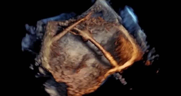 Ультразвуковая технология позволяет наблюдать за работой сердца пациента в режиме реального времени - 1