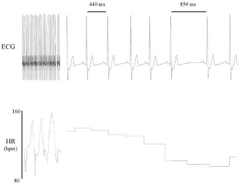 Wme2 — на что способен браслет от авторов первого iPhone: ЭКГ, давление и пульс из двух пальцев - 10