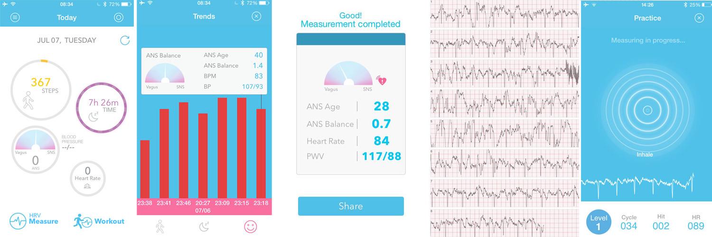 Wme2 — на что способен браслет от авторов первого iPhone: ЭКГ, давление и пульс из двух пальцев - 2
