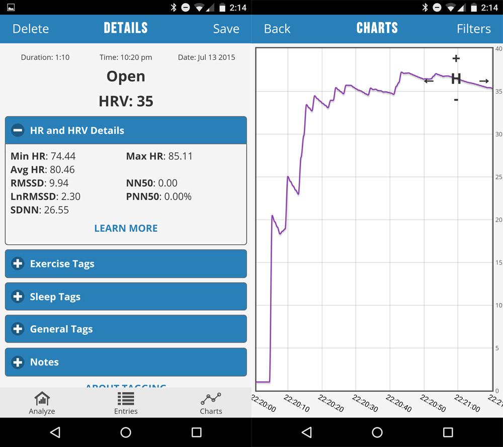 Wme2 — на что способен браслет от авторов первого iPhone: ЭКГ, давление и пульс из двух пальцев - 27