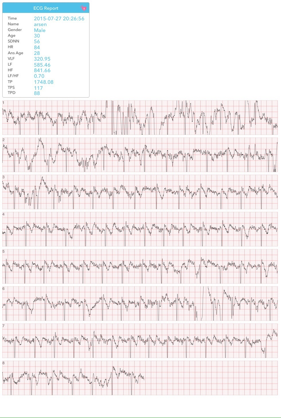 Wme2 — на что способен браслет от авторов первого iPhone: ЭКГ, давление и пульс из двух пальцев - 6