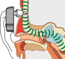 Мировая медицина и 3D-печать: чтобы лучше слышать - 3