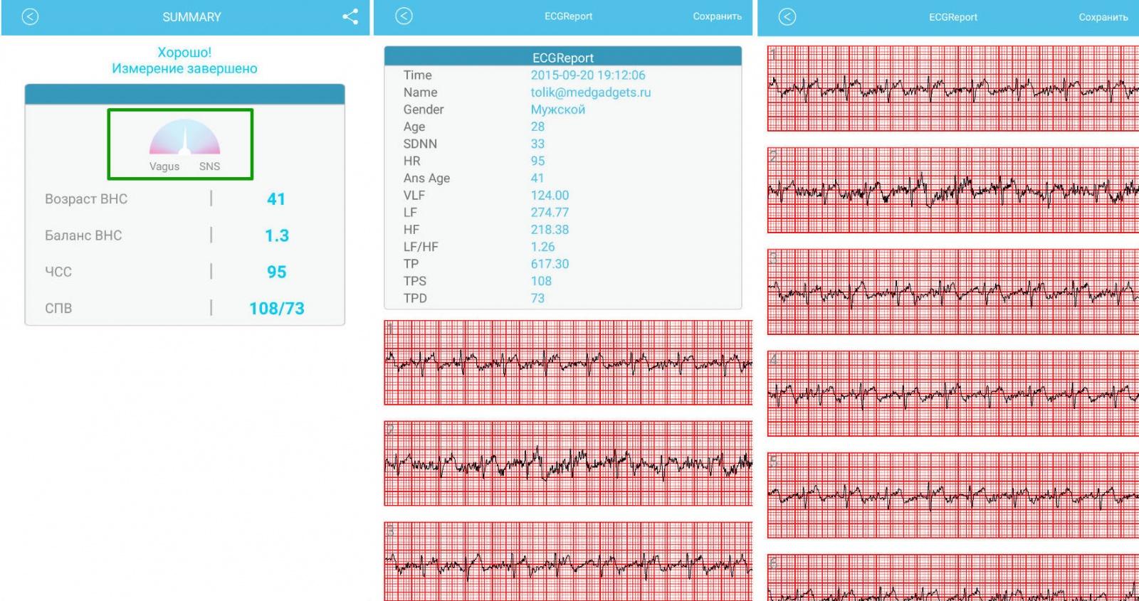 Обзор W-Me2 — первый трекер, который измеряет давление. А также пульс. И записывает ЭКГ - 27