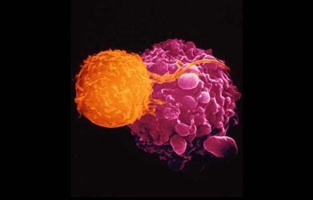Первый генетически модифицированный вирус одобрен для лечения рака - 1