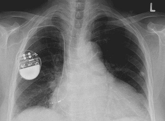 Можно ли взломать кардиостимулятор: краткая история безопасности медицинских устройств - 4
