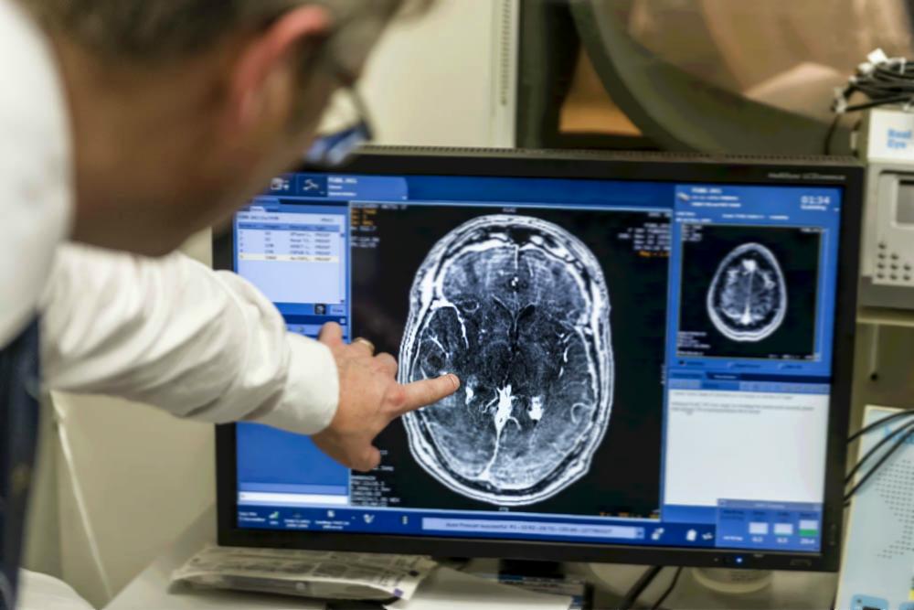 Ультразвук помог впервые преодолеть гемато-энцефалический барьер: методика повысит эффективность химиотерапии опухолей мозга - 2
