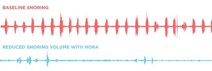 Современные технологии избавляют от храпа: неинвазивная система Nora - 6