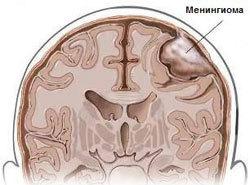 История изучения мозга от Древнего Египта до начала XX века - 21