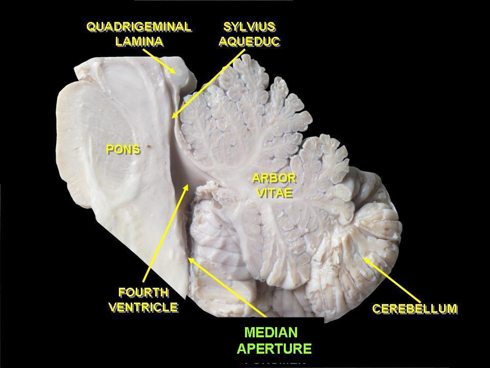 История изучения мозга от Древнего Египта до начала XX века - 46