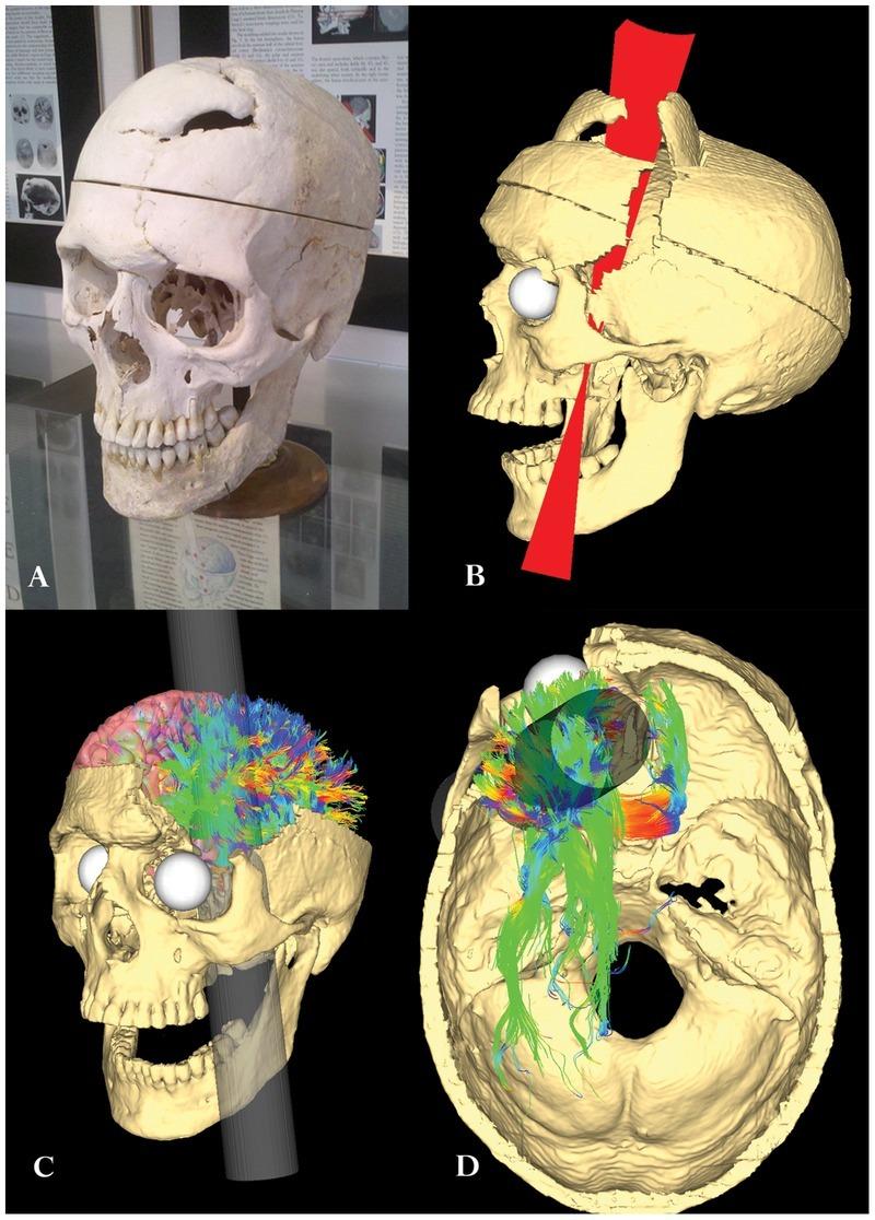 История изучения мозга от Древнего Египта до начала XX века - 53
