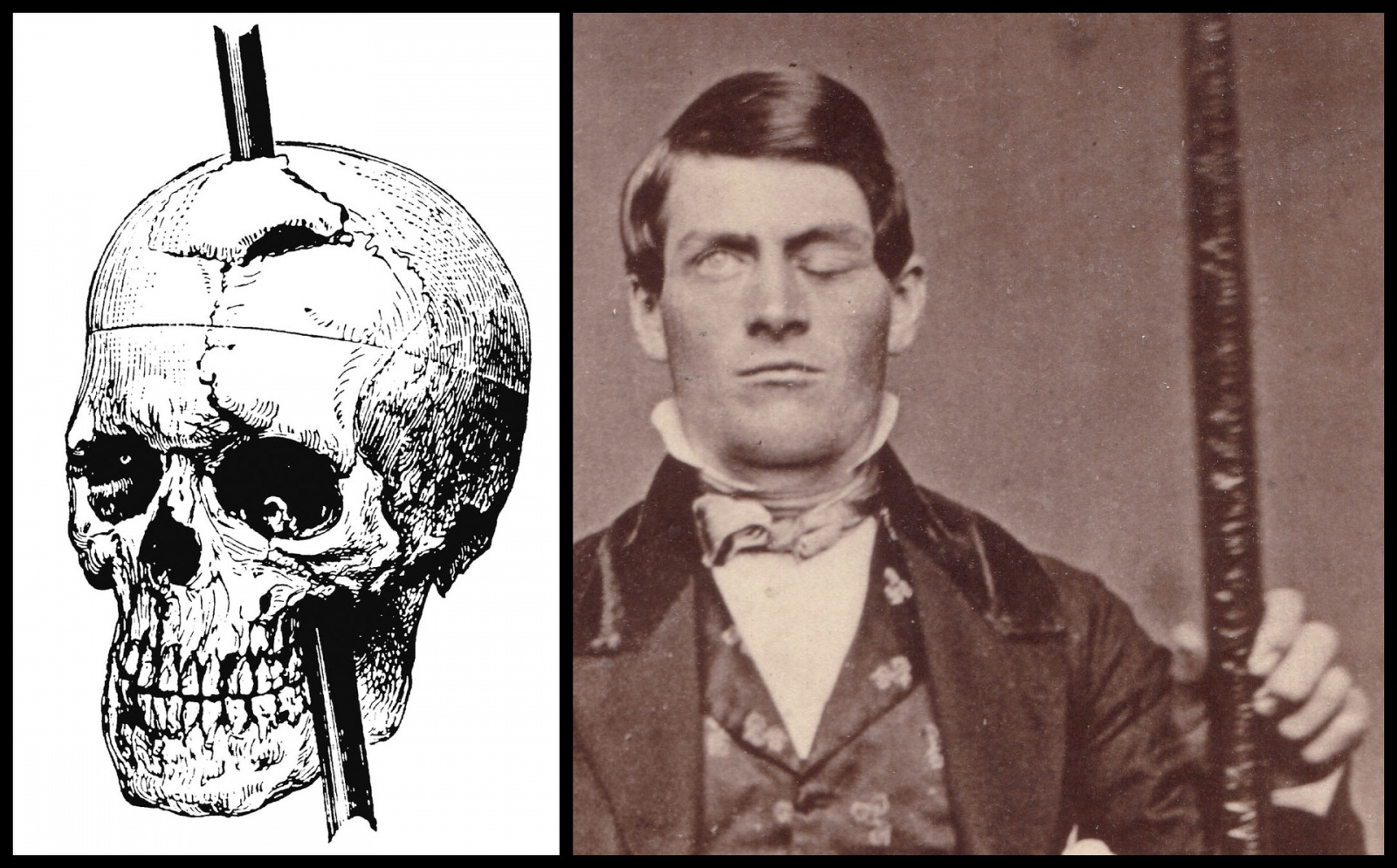 История изучения мозга от Древнего Египта до начала XX века - 54