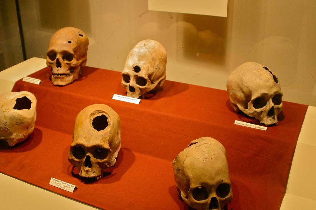История изучения мозга от Древнего Египта до начала XX века - 6