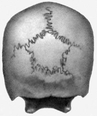 История изучения мозга от Древнего Египта до начала XX века - 61