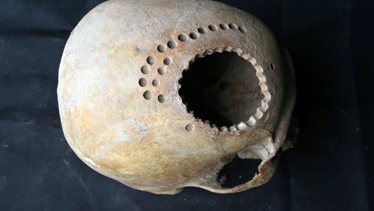 История изучения мозга от Древнего Египта до начала XX века - 1