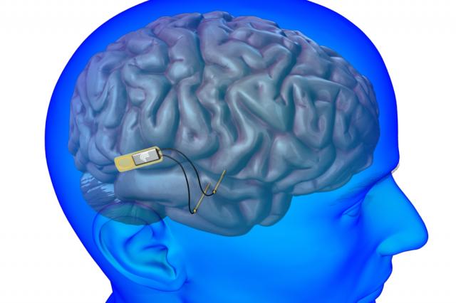 Чип для восстановления памяти разрабатывают в DARPA - 1