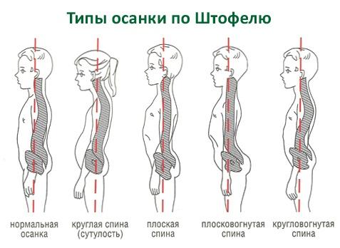 Организация рабочего места с позиции здоровья спины (и не только) - 3