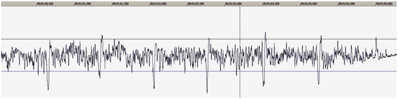 Получение сигнала ЭКГ на ПК и задел на ЭЭГ - 10