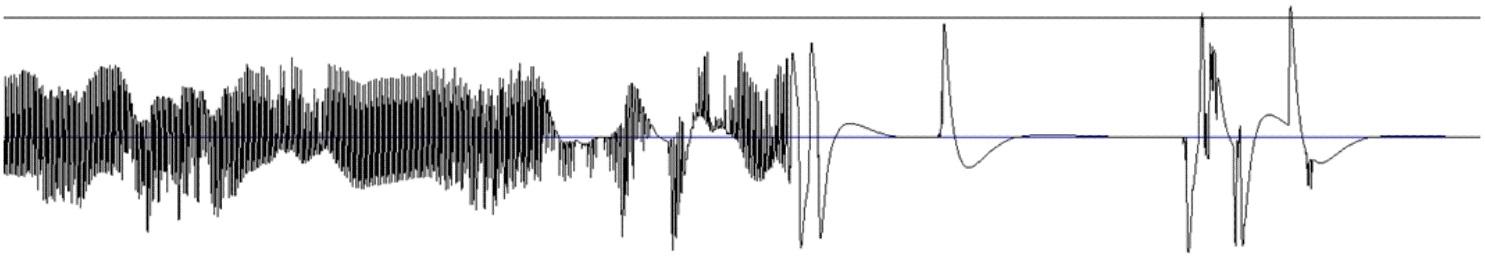 Получение сигнала ЭКГ на ПК и задел на ЭЭГ - 11