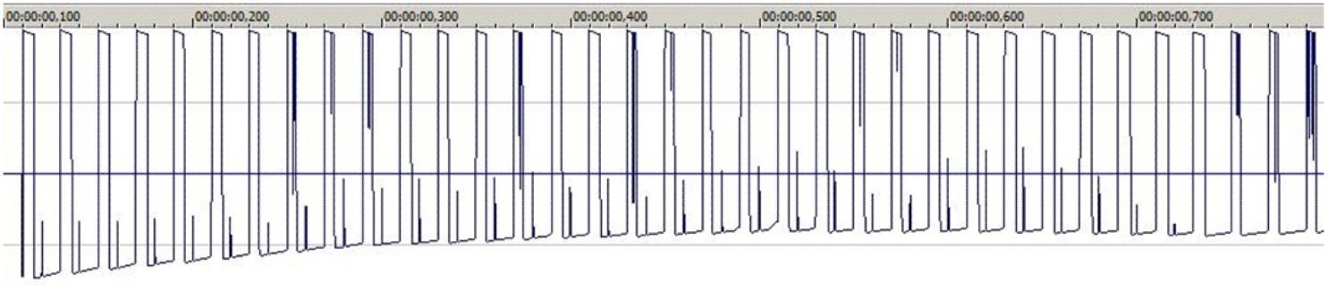 Получение сигнала ЭКГ на ПК и задел на ЭЭГ - 6