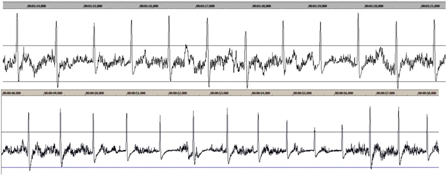 Получение сигнала ЭКГ на ПК и задел на ЭЭГ - 7