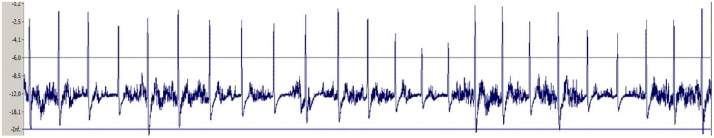 Получение сигнала ЭКГ на ПК и задел на ЭЭГ - 8