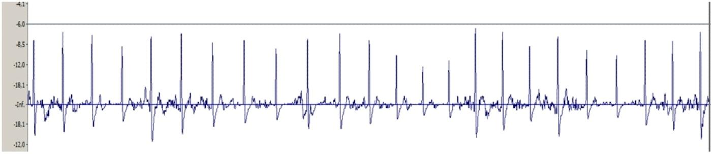 Получение сигнала ЭКГ на ПК и задел на ЭЭГ - 9