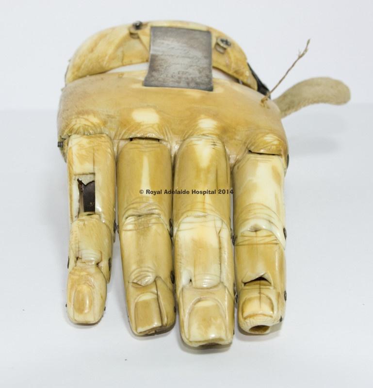 Создатели распечатанного на 3D принтере протеза руки вдохновились проектом 1845 года - 4