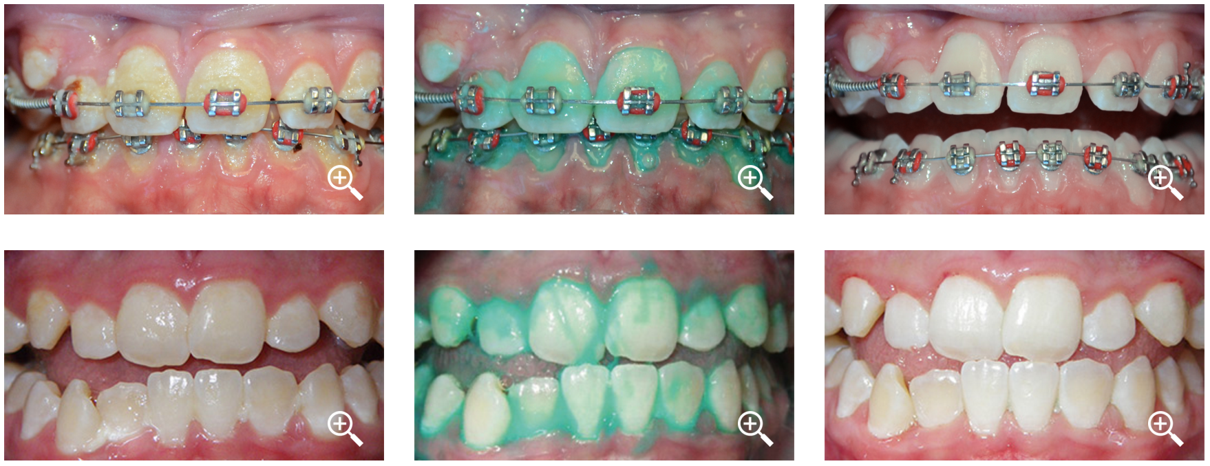 «Умная» зубная паста для тех, кто носит брекеты - 2