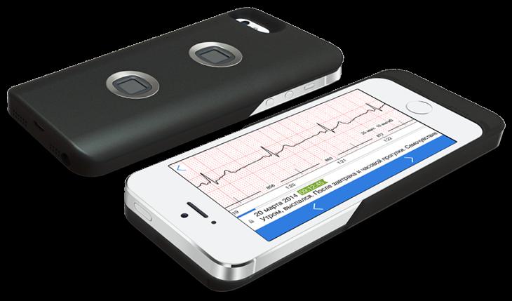10 гаджетов, помогающих следить за здоровьем с помощью смартфона - 2