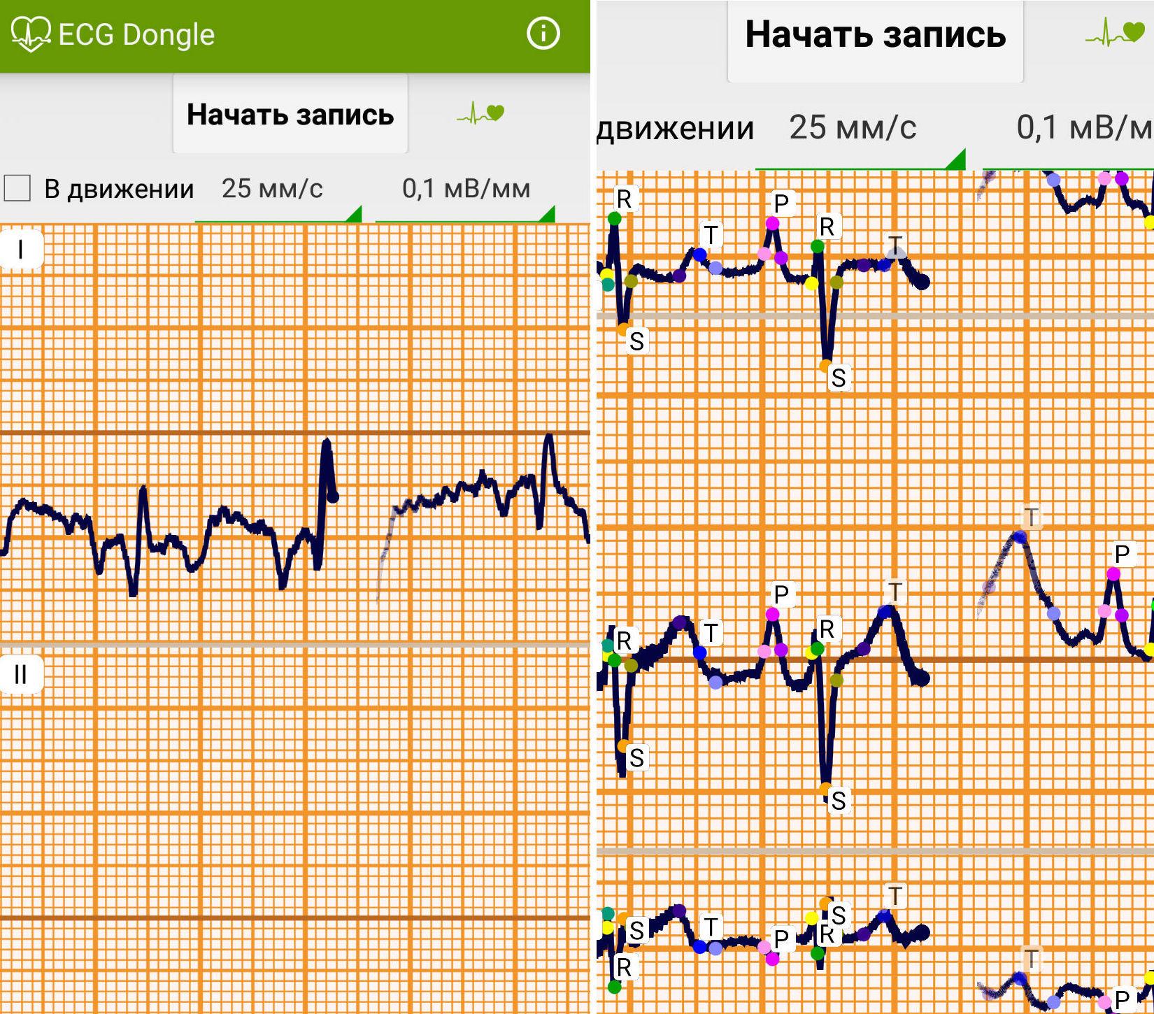 ЭКГ на дому, или сделано в России: отечественные разработчики представили кардиофлешку - 7