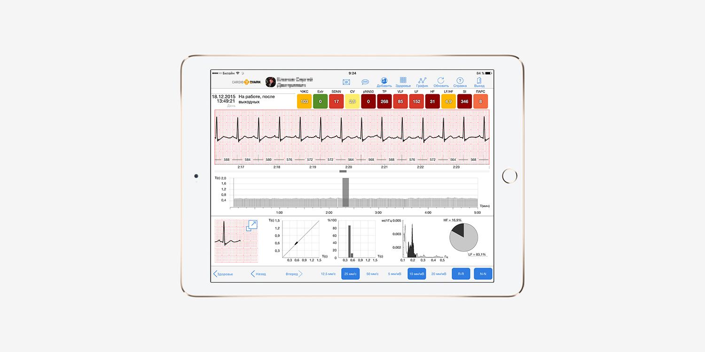 CardioQVARK — мобильный гаджет для контроля работы сердца - 2