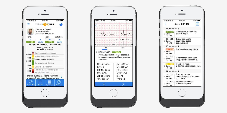 CardioQVARK — мобильный гаджет для контроля работы сердца - 3