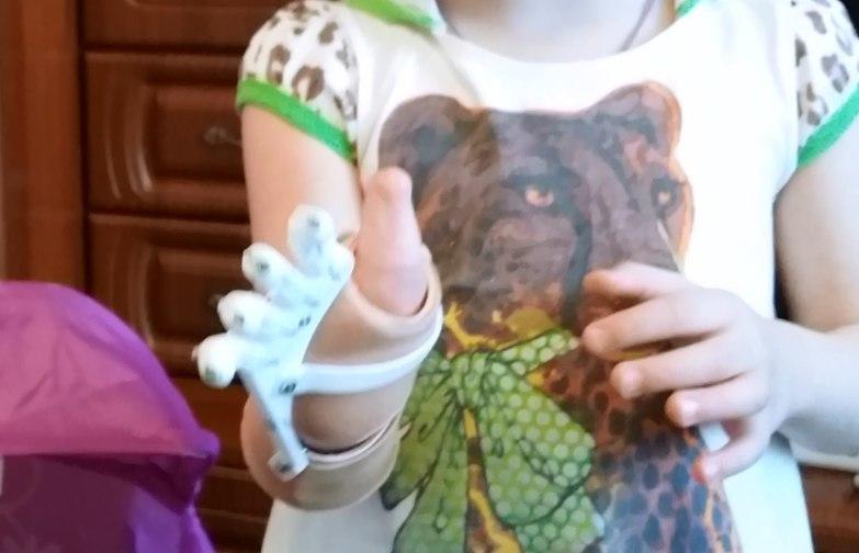Как «Моторика» делает протезы для детей - 11