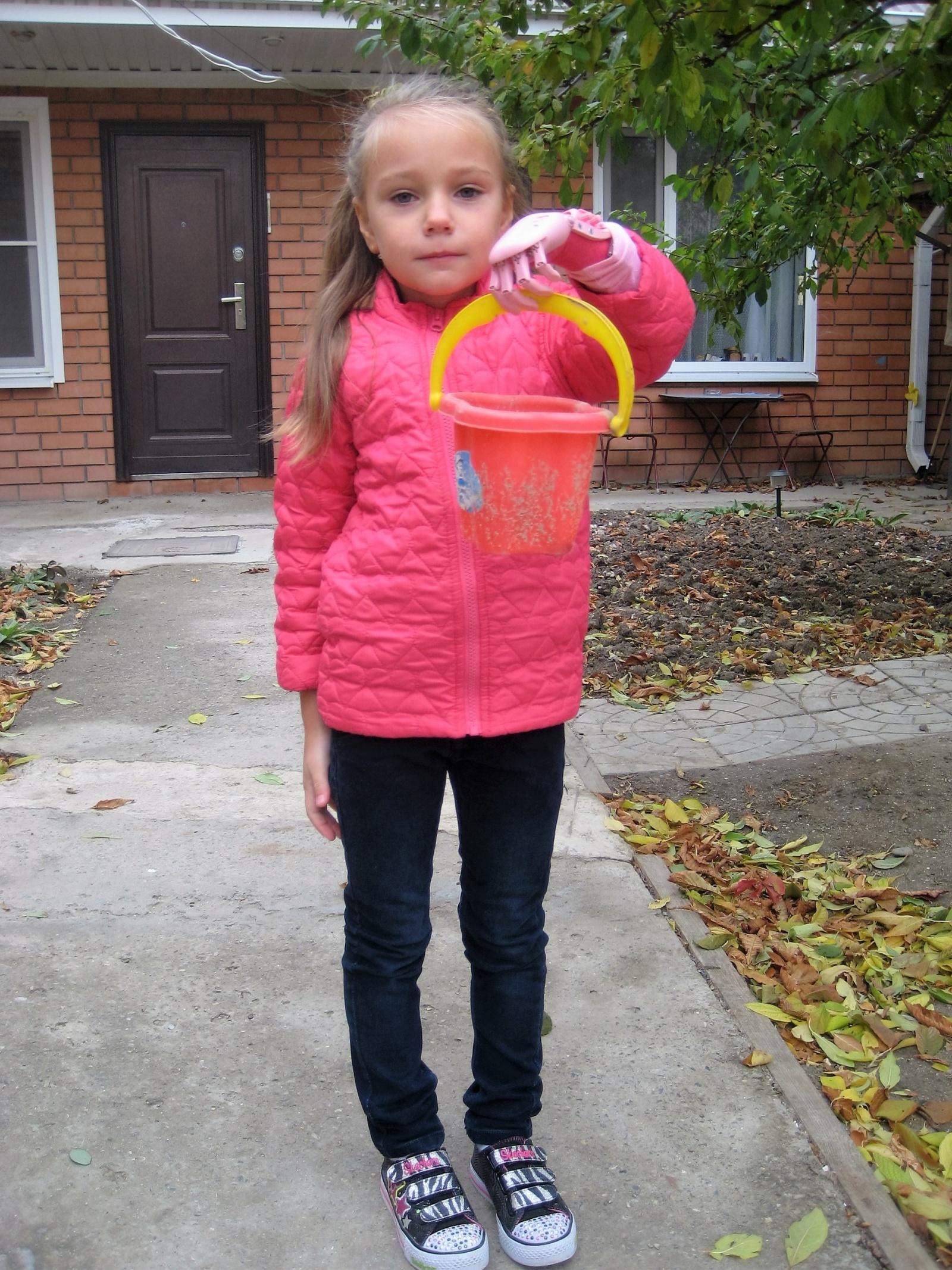 Как «Моторика» делает протезы для детей - 12
