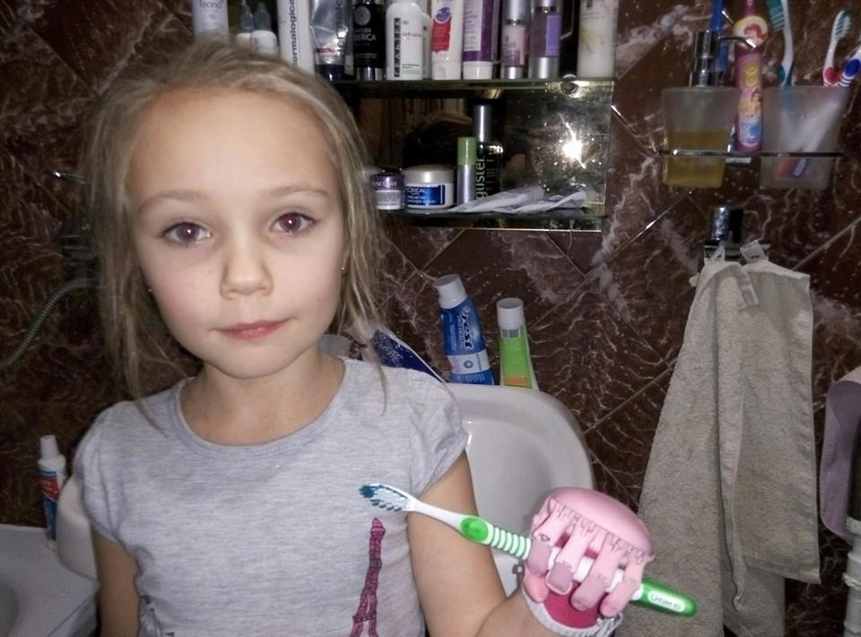 Как «Моторика» делает протезы для детей - 13