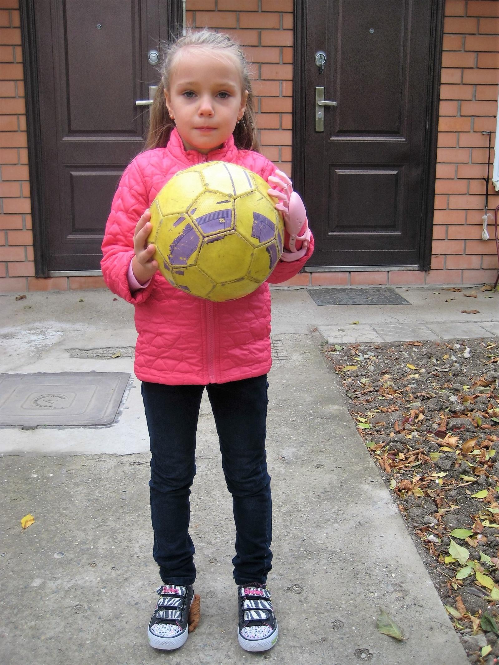 Как «Моторика» делает протезы для детей - 14