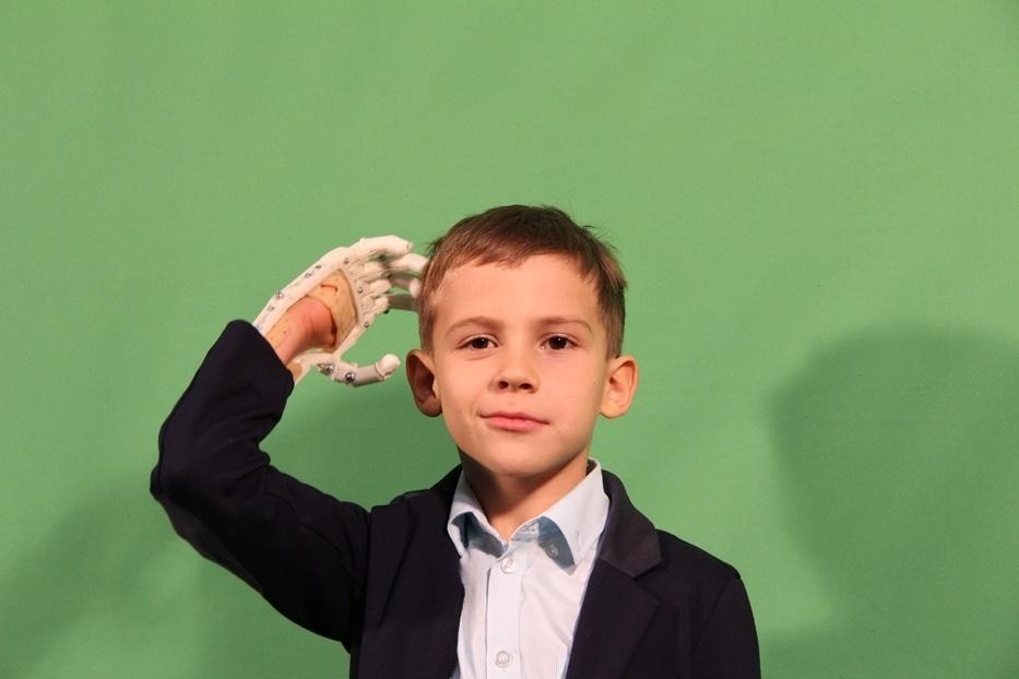 Как «Моторика» делает протезы для детей - 16