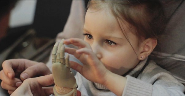 Как «Моторика» делает протезы для детей - 20