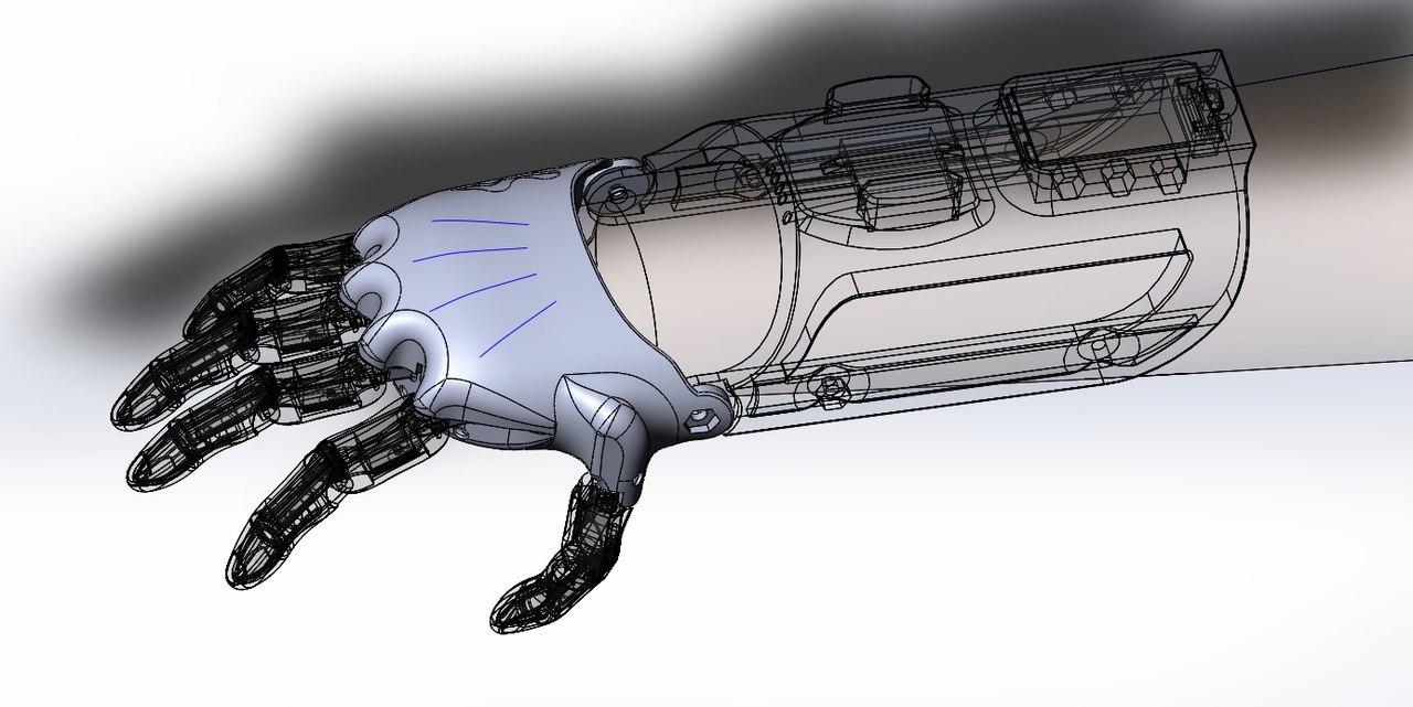 Как «Моторика» делает протезы для детей - 4