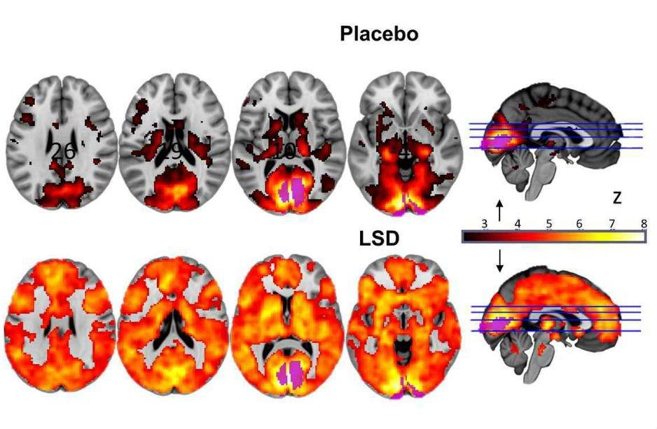Сканы мозга показали, как ЛСД действует на сознание - 2