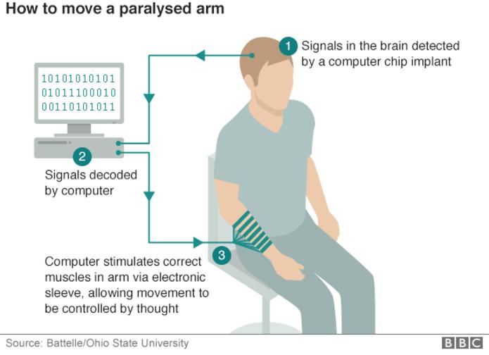 Мозговой имплантат впервые позволил парализованному человеку управлять рукой - 2