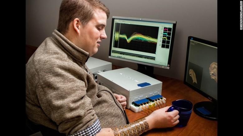 Мозговой имплантат впервые позволил парализованному человеку управлять рукой - 4
