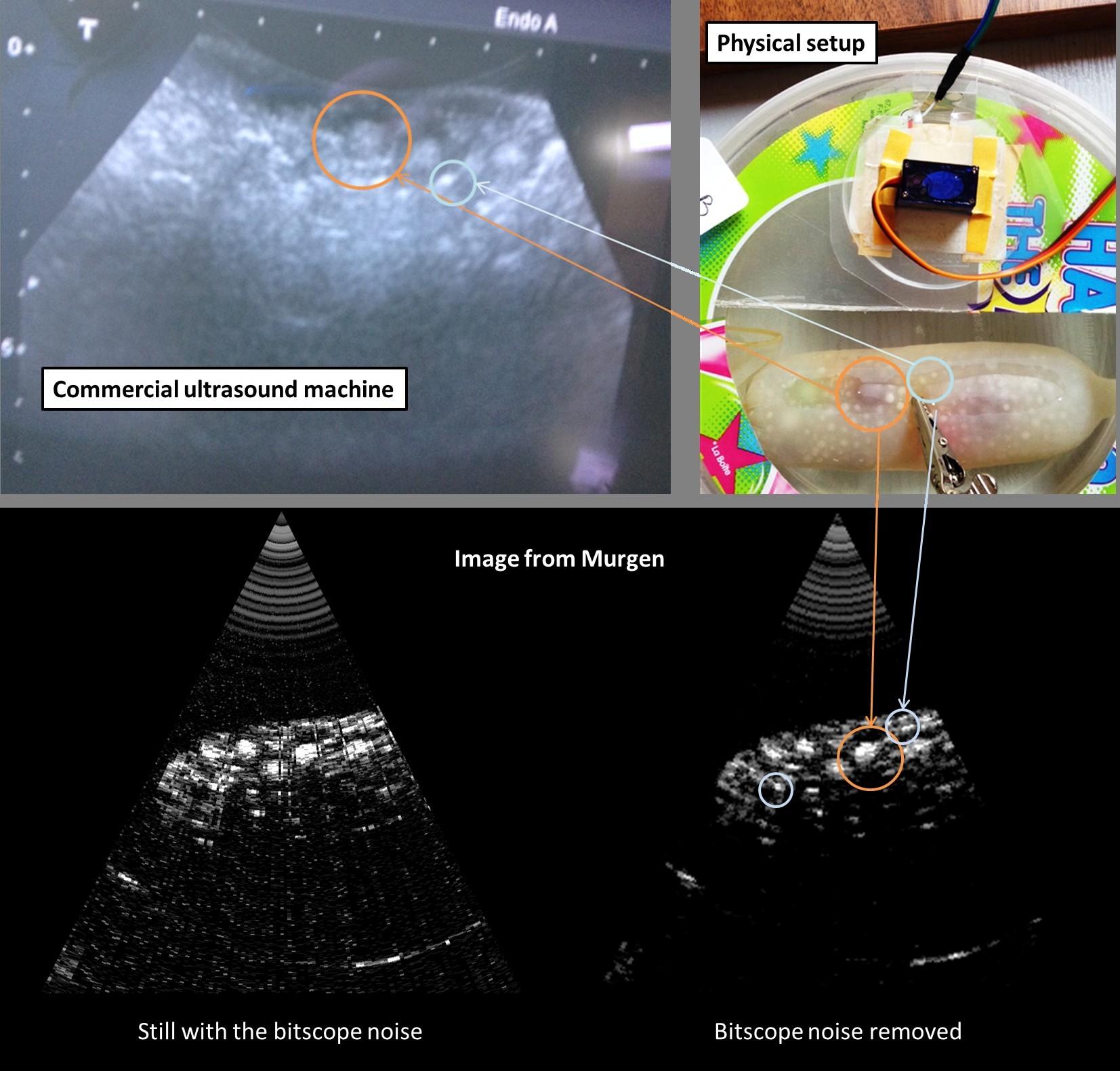 Самодельный сканер УЗИ получил первые изображения - 2