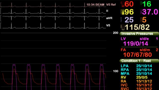 Процедура катетеризации сердца пациента в американской больнице была прервана антивирусом - 1