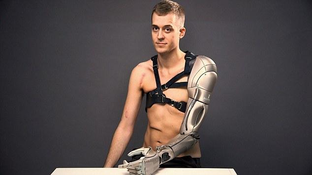 26-летний мужчина получил протез руки с зарядкой для телефона, фонариком и дроном - 1