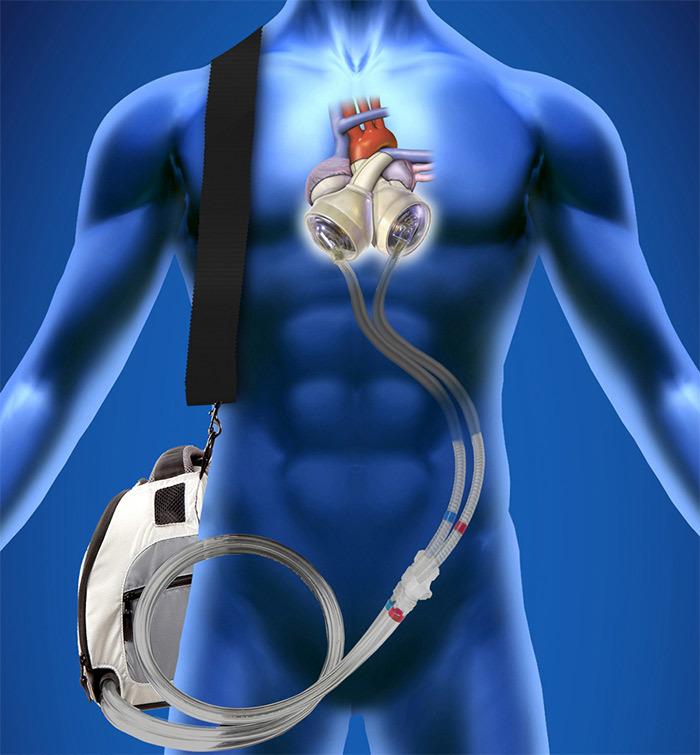 25-летний парень больше года прожил с искусственным сердцем в рюкзаке - 3