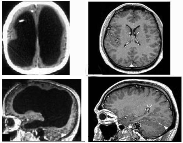 Мужчина, который живёт без 90% мозга, озадачил учёных - 2